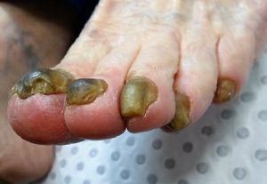 fungal nails before treatment