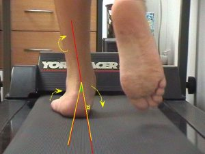 podiatry care gait analysis