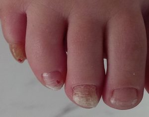 podiatry care post fungal nails